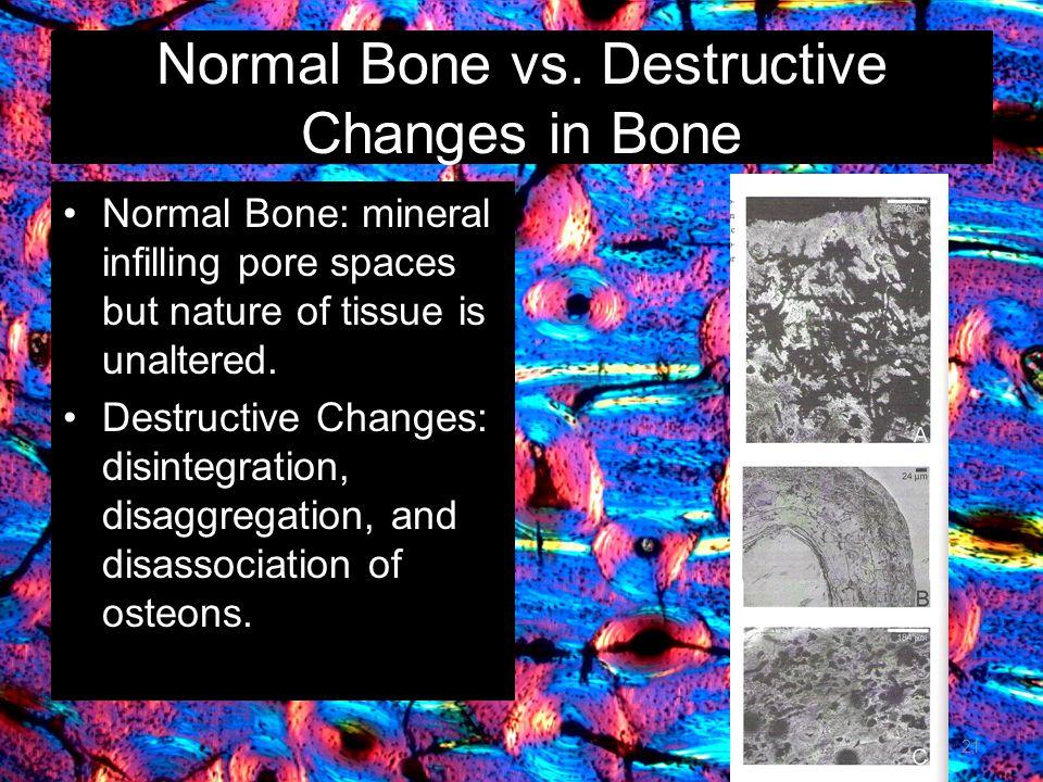 Normal Bone vs. Destructive Changes in Bone