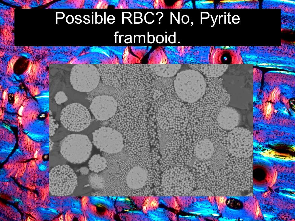 Possible RBC No, Pyrite framboid.