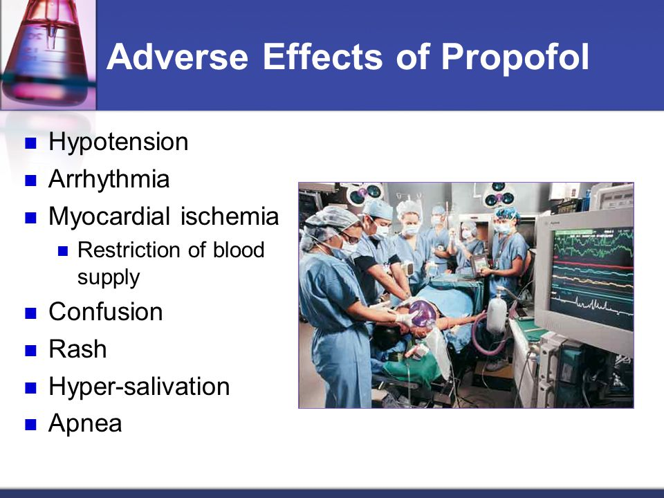 Adverse Effects of Propofol
