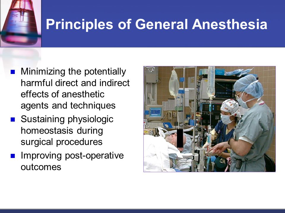 Principles of General Anesthesia