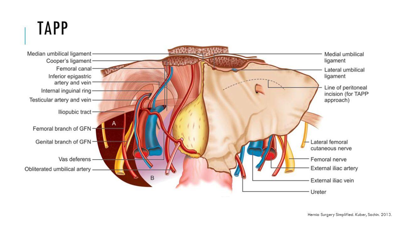 TAPP Hernia Surgery Simplified. Kuber, Sachin. 2013.