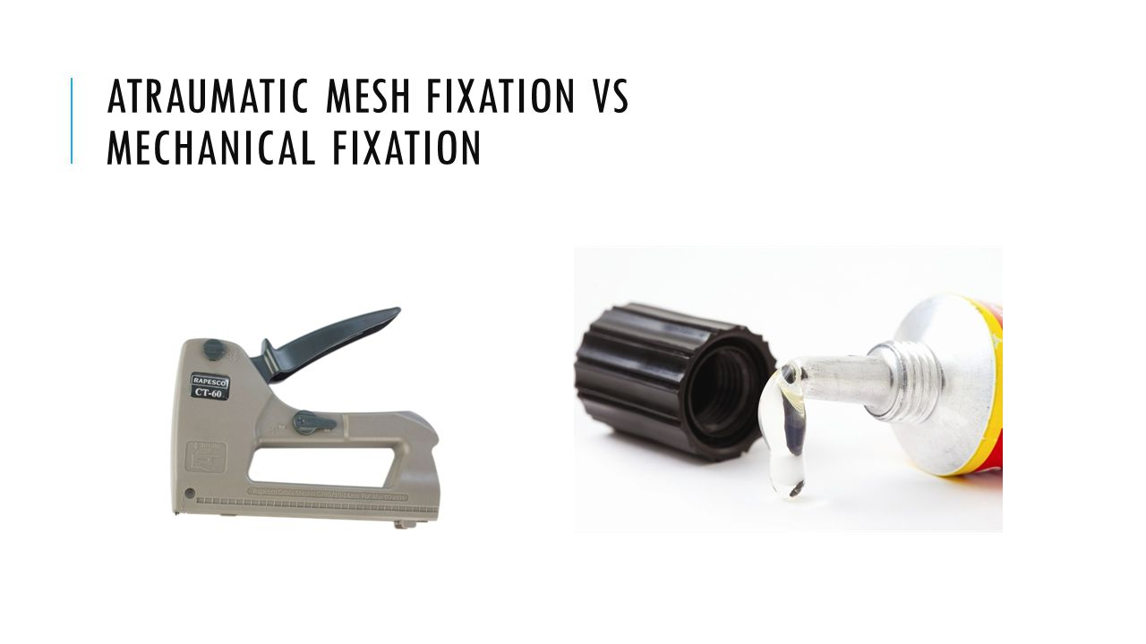 ATRAUMATIC MESH FIXATION VS MECHANICAL FIXATION