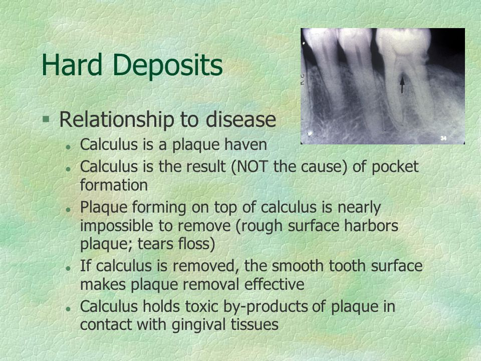 Hard Deposits Relationship to disease Calculus is a plaque haven