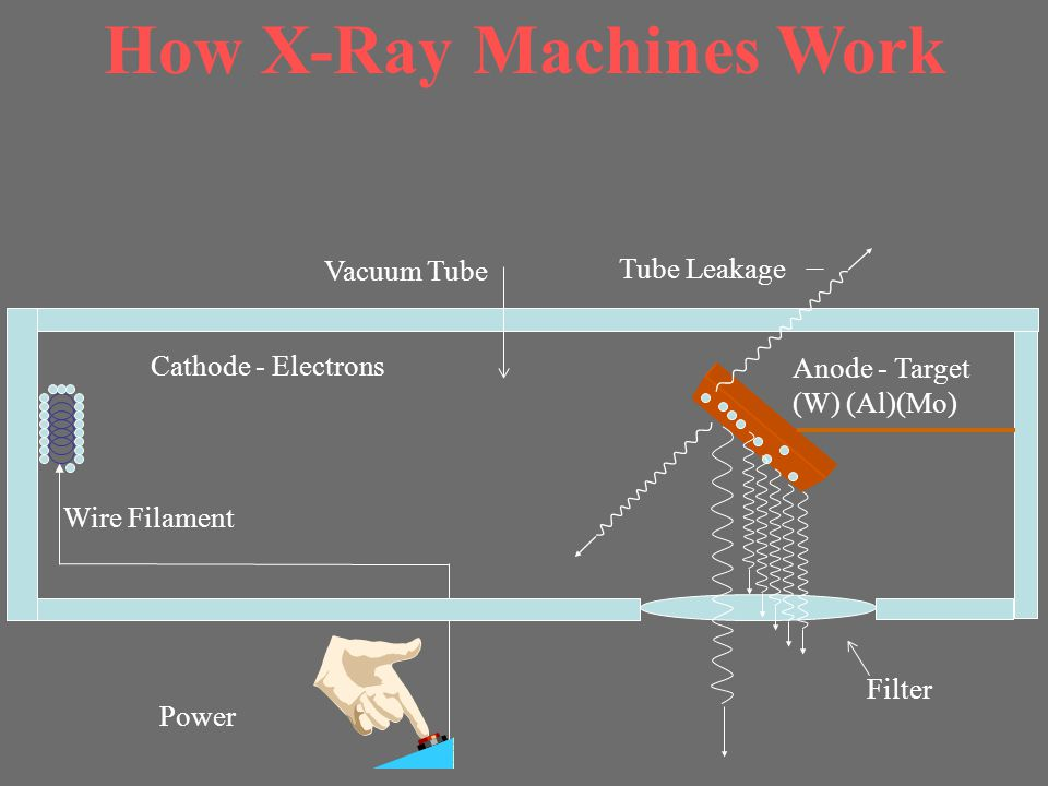 How X-Ray Machines Work