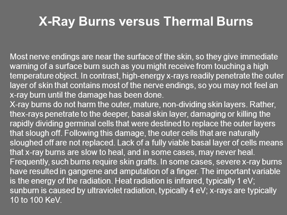 X-Ray Burns versus Thermal Burns