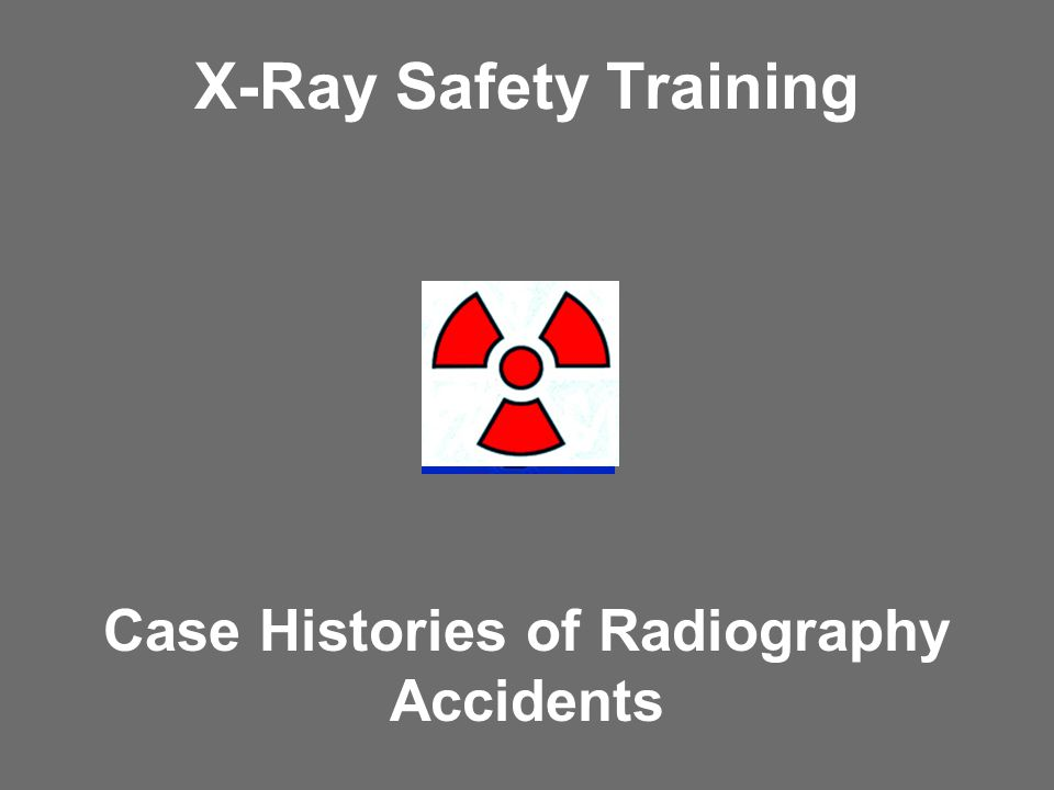 Case Histories of Radiography Accidents