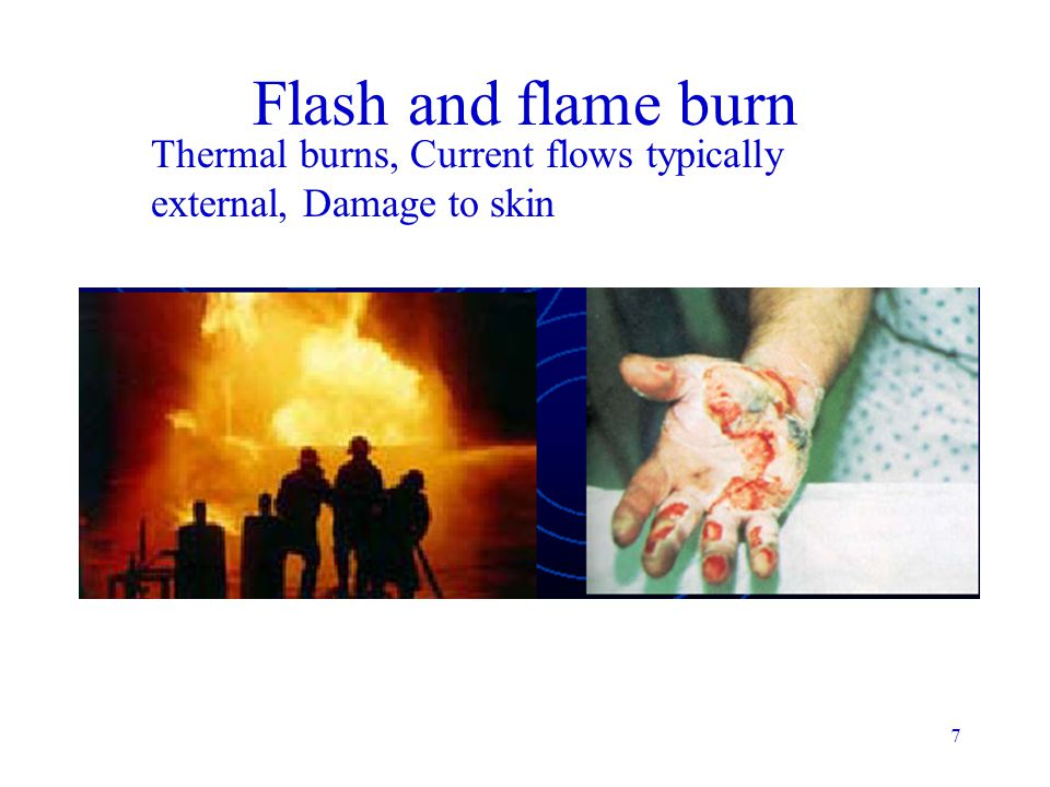 Flash and flame burn Thermal burns, Current flows typically external, Damage to skin