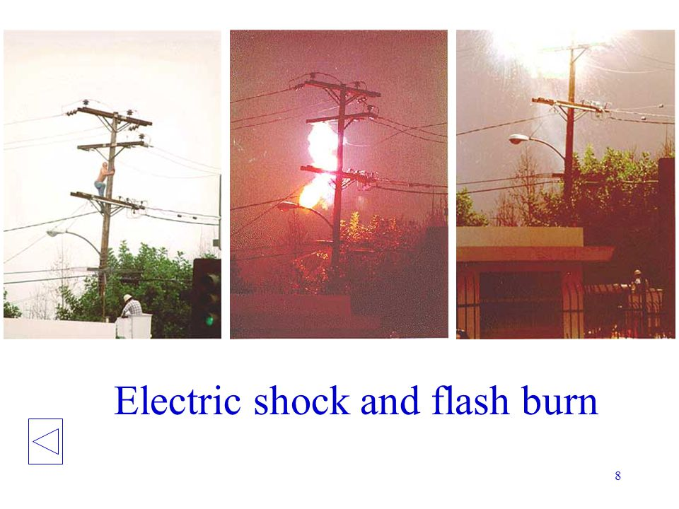 Electric shock and flash burn