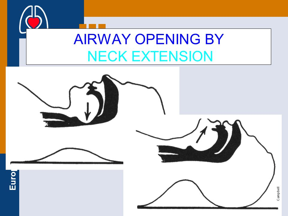 AIRWAY OPENING BY NECK EXTENSION