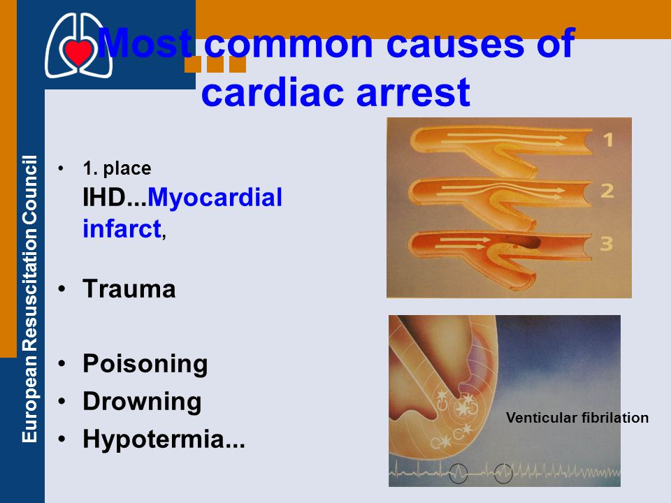 Most common causes of cardiac arrest