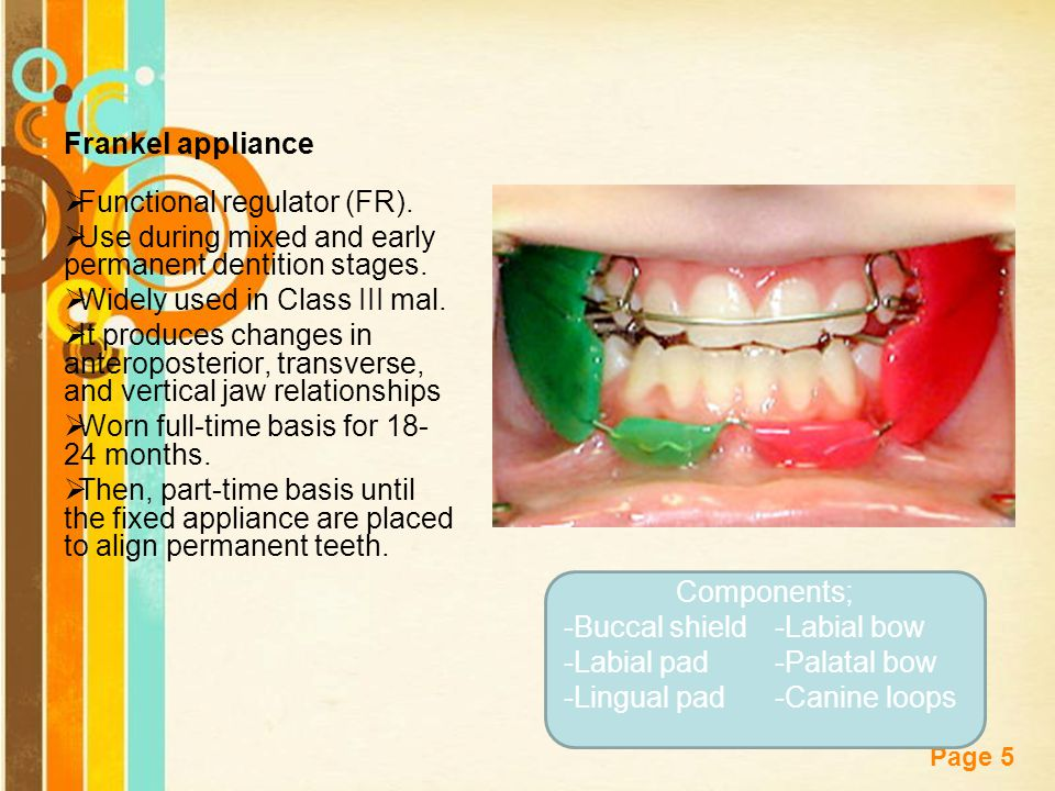 Frankel appliance Functional regulator (FR). Use during mixed and early permanent dentition stages.