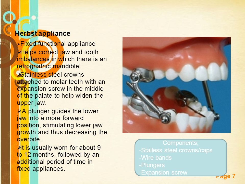 Herbst appliance Fixed functional appliance. Helps correct jaw and tooth imbalances in which there is an retrognathic mandible.
