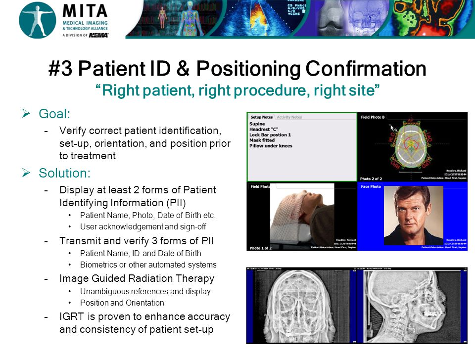 #3 Patient ID & Positioning Confirmation Right patient, right procedure, right site