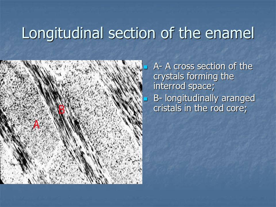 Longitudinal section of the enamel