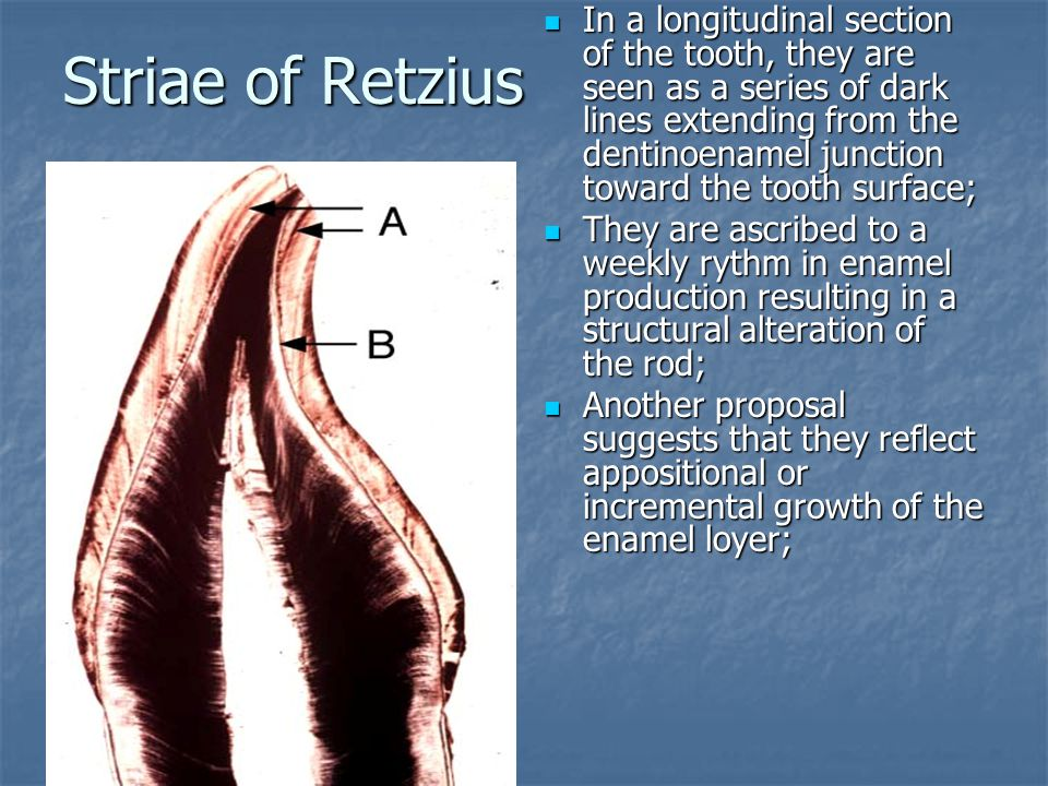 Striae of Retzius
