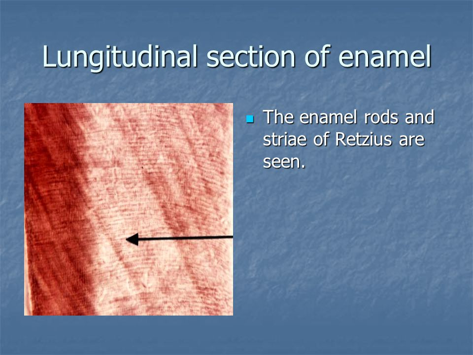 Lungitudinal section of enamel