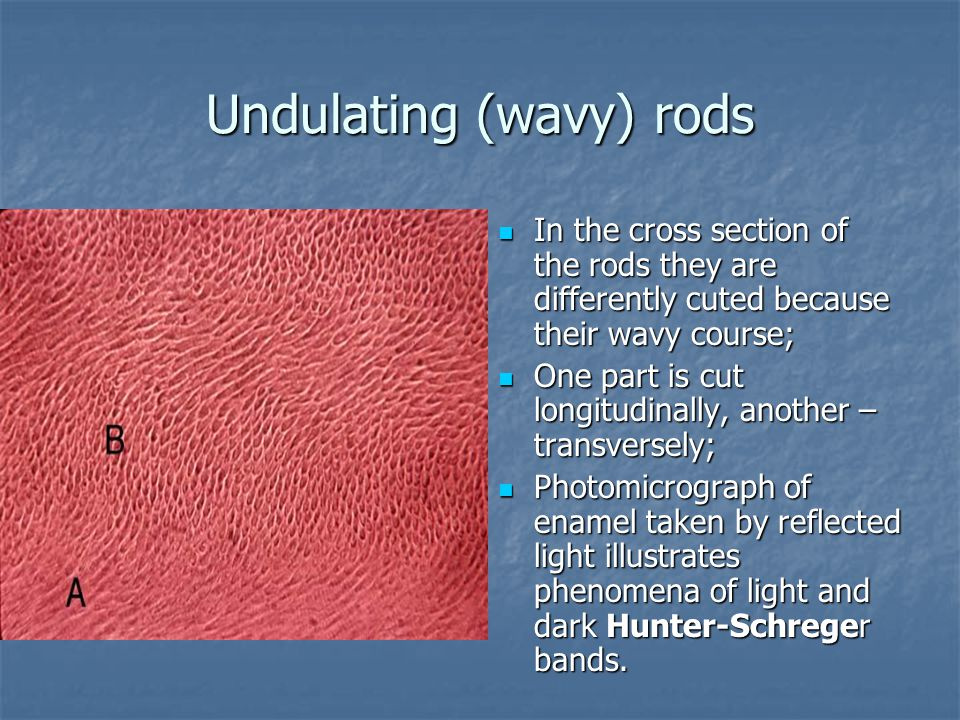 Undulating (wavy) rods