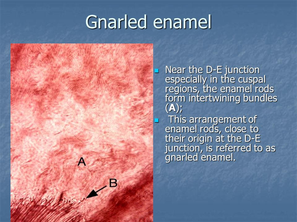 Gnarled enamel Near the D-E junction especially in the cuspal regions, the enamel rods form intertwining bundles (A);