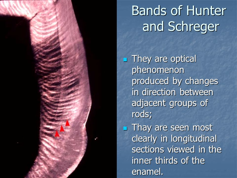 Bands of Hunter and Schreger