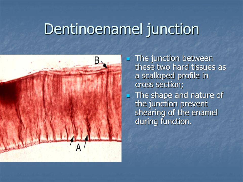 Dentinoenamel junction