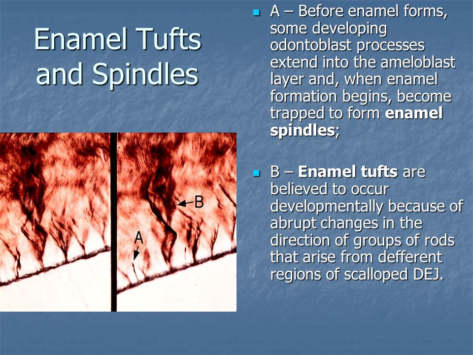 Enamel Tufts and Spindles