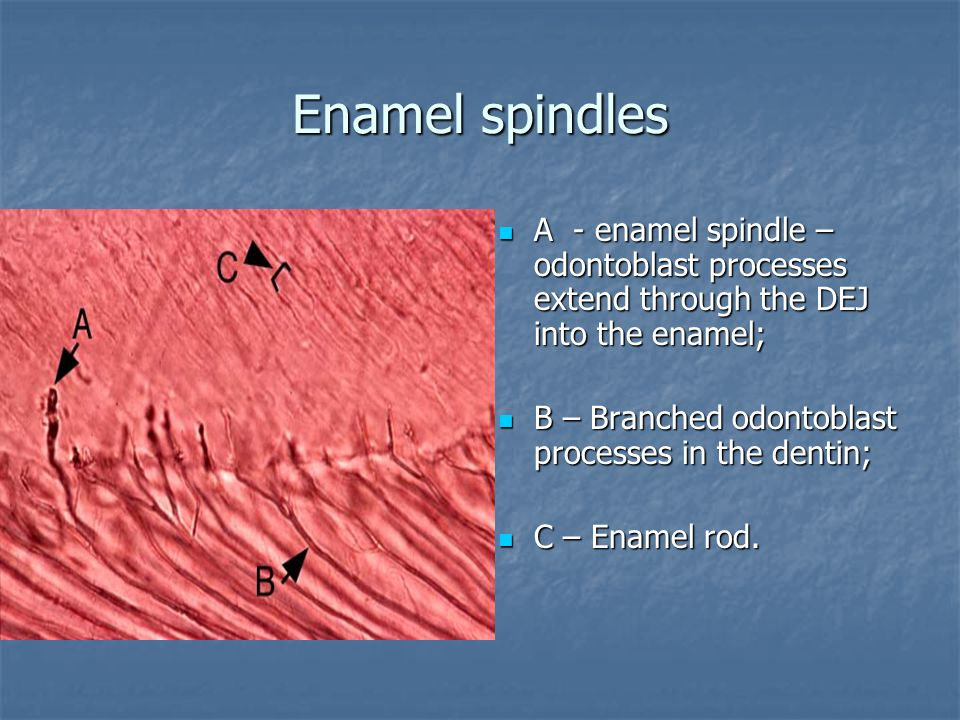 Enamel spindles А - enamel spindle – odontoblast processes extend through the DEJ into the enamel;