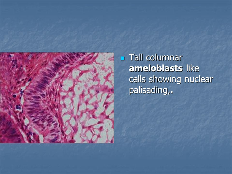Tall columnar ameloblasts like cells showing nuclear palisading,.