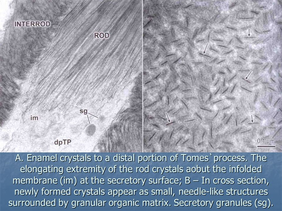 A. Enamel crystals to a distal portion of Tomes`process