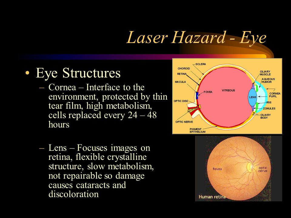 Laser Hazard - Eye Eye Structures