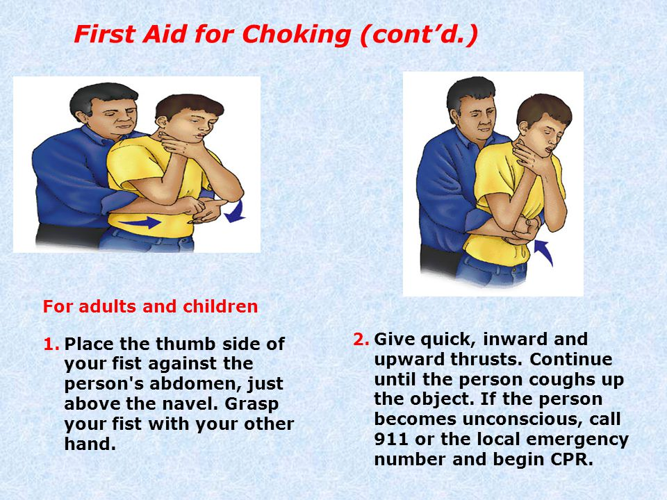 First Aid for Choking (cont'd.)