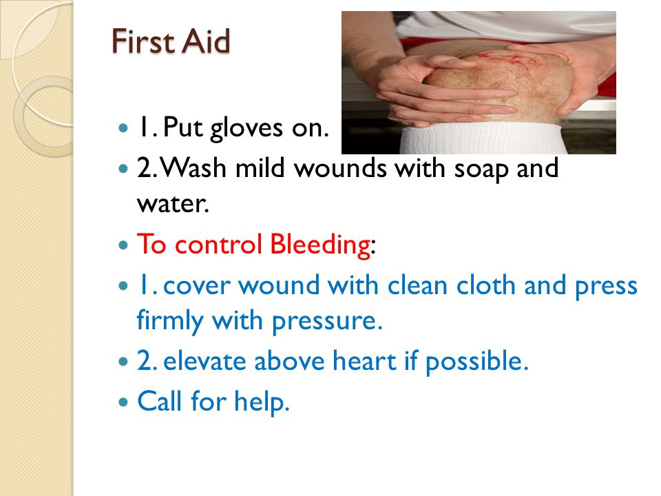 First Aid 1. Put gloves on. 2. Wash mild wounds with soap and water.