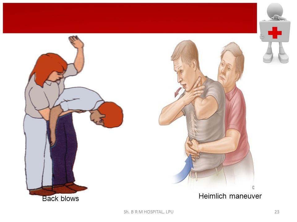 back blows Heimlich maneuver Back blows Sh. B R M HOSPITAL, LPU