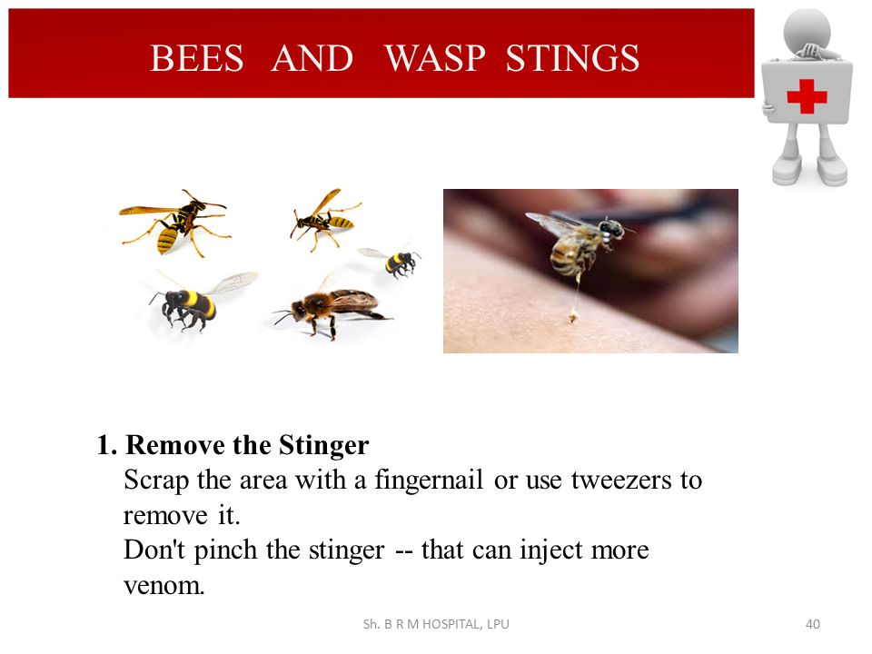 BEES AND WASP STINGS 1. Remove the Stinger
