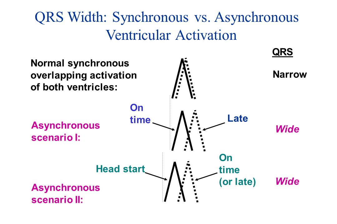 QRS Width: Synchronous vs. Asynchronous Ventricular Activation