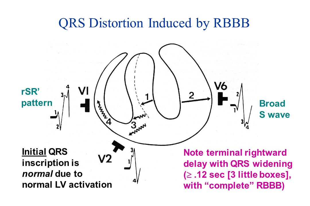 QRS Distortion Induced by RBBB