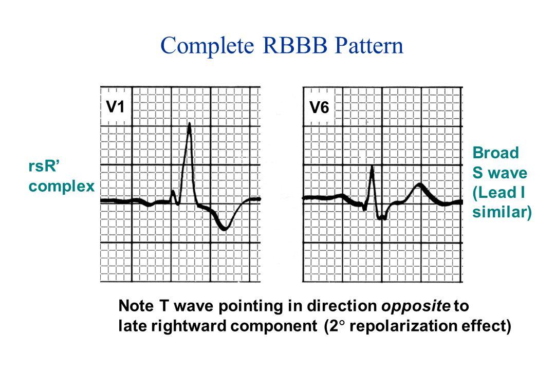Complete RBBB Pattern V1 V6 Broad S wave rsR' (Lead I complex similar)