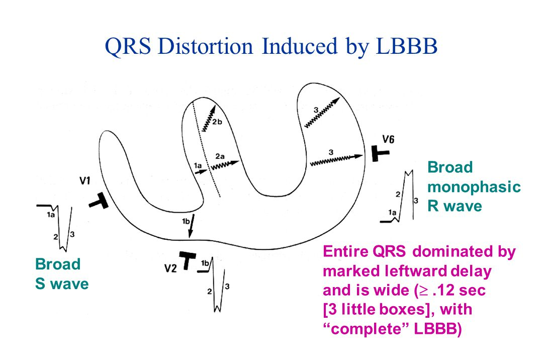 QRS Distortion Induced by LBBB