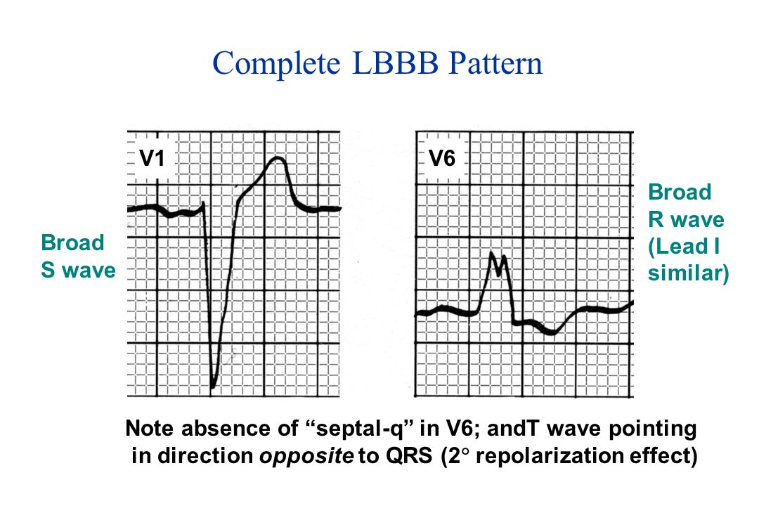 Complete LBBB Pattern V1 V6 Broad R wave (Lead I similar) Broad S wave