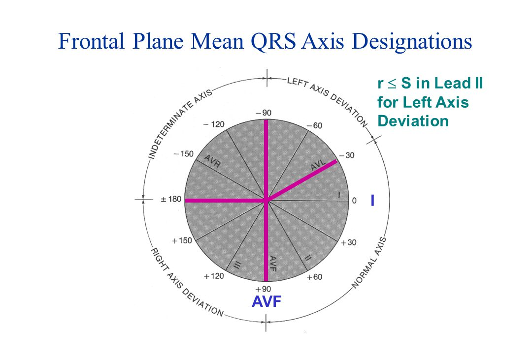 Frontal Plane Mean QRS Axis Designations