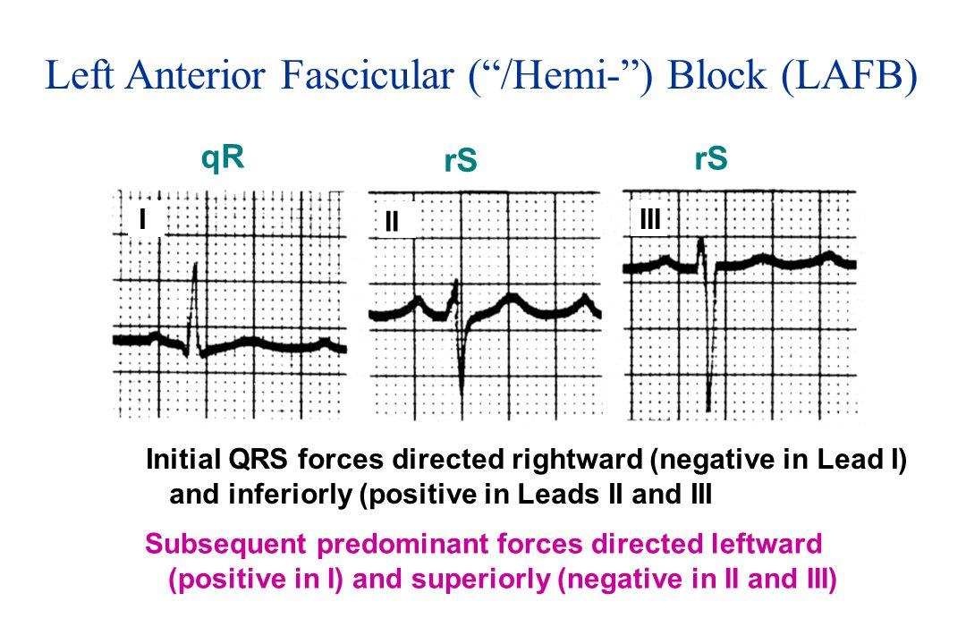 Left Anterior Fascicular ( /Hemi- ) Block (LAFB)