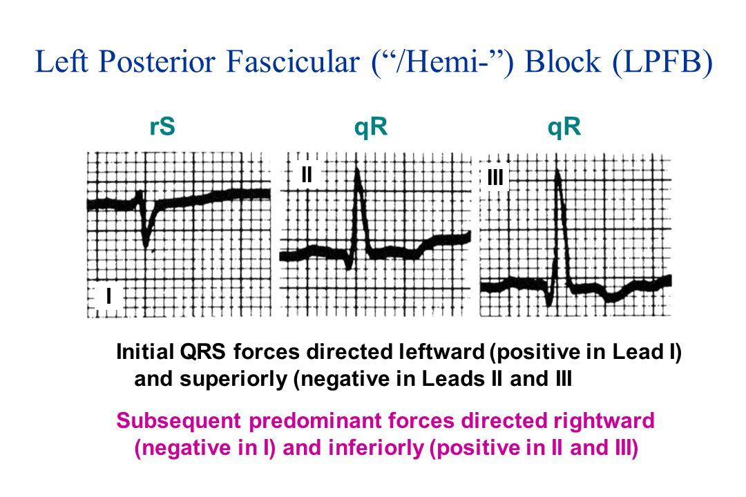 Left Posterior Fascicular ( /Hemi- ) Block (LPFB)