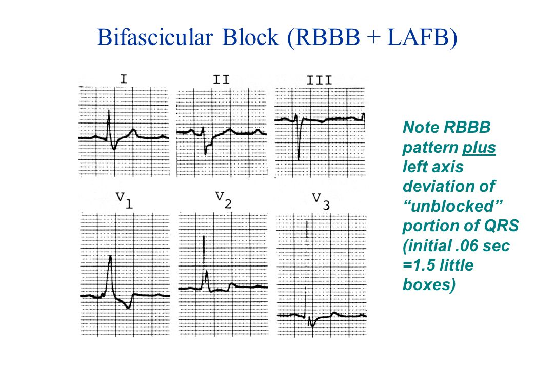 Bifascicular Block (RBBB + LAFB)