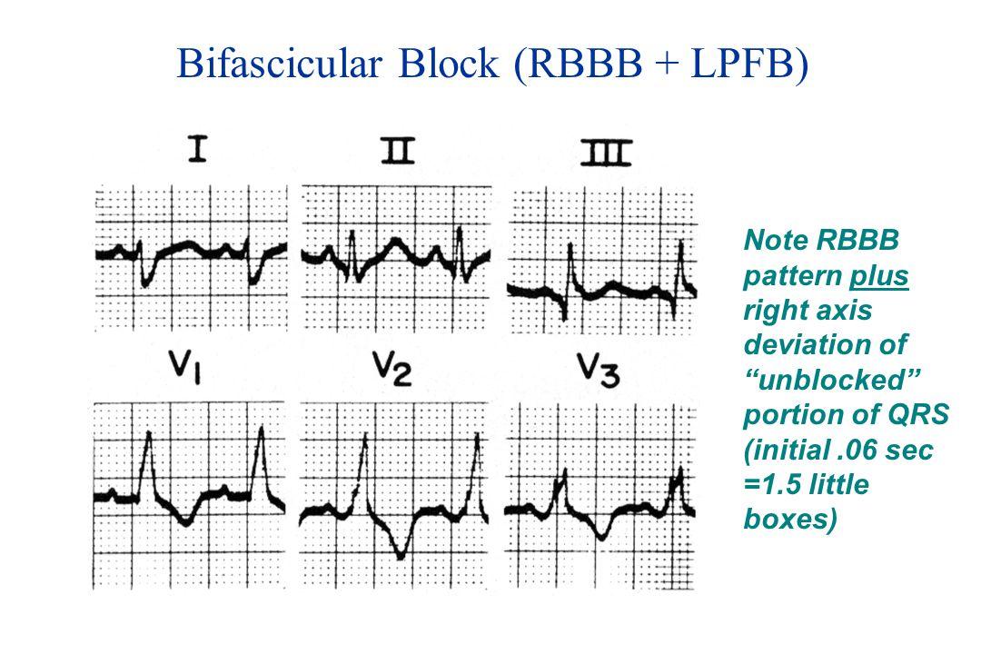 Bifascicular Block (RBBB + LPFB)