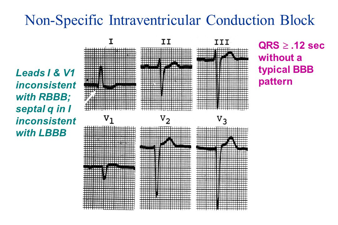 Non-Specific Intraventricular Conduction Block