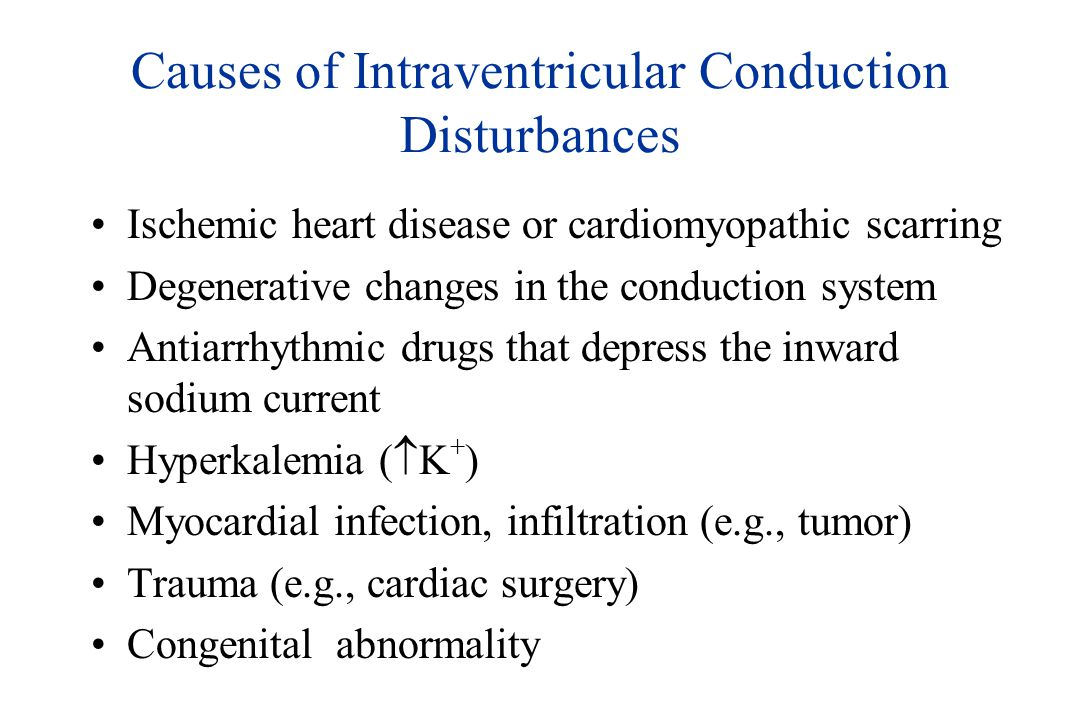Causes of Intraventricular Conduction Disturbances