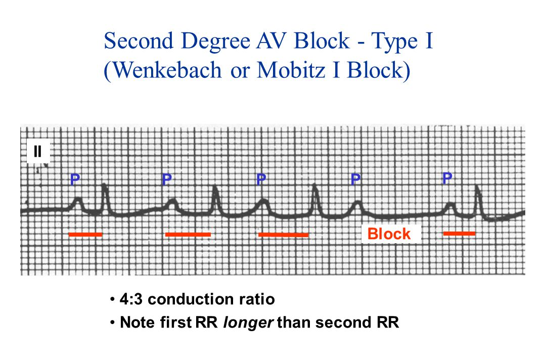 Second Degree AV Block - Type I (Wenkebach or Mobitz I Block)