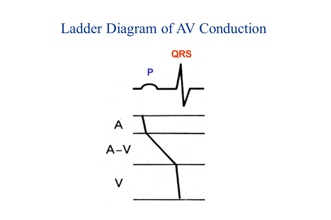 Ladder Diagram of AV Conduction