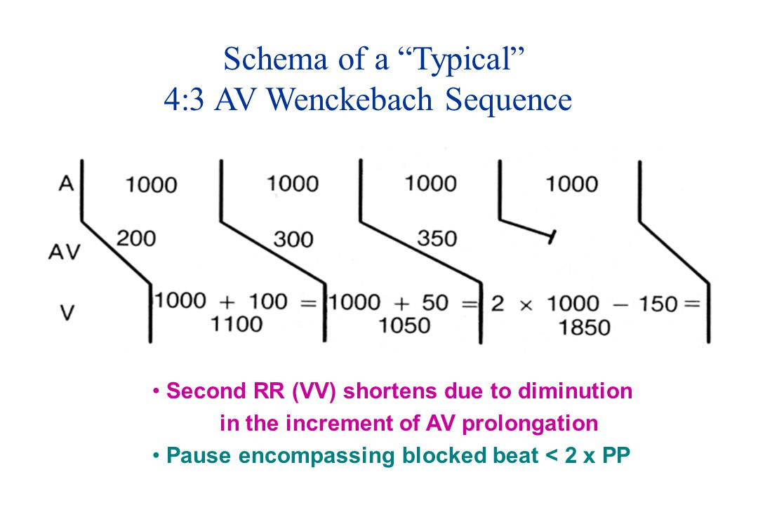 4:3 AV Wenckebach Sequence