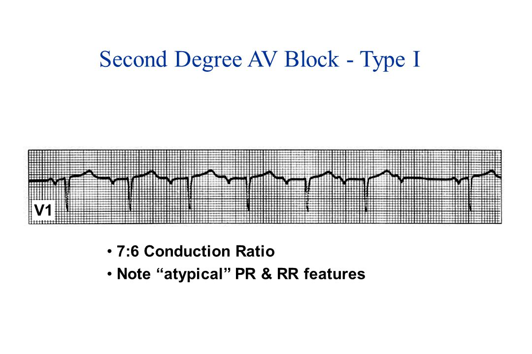 Second Degree AV Block - Type I