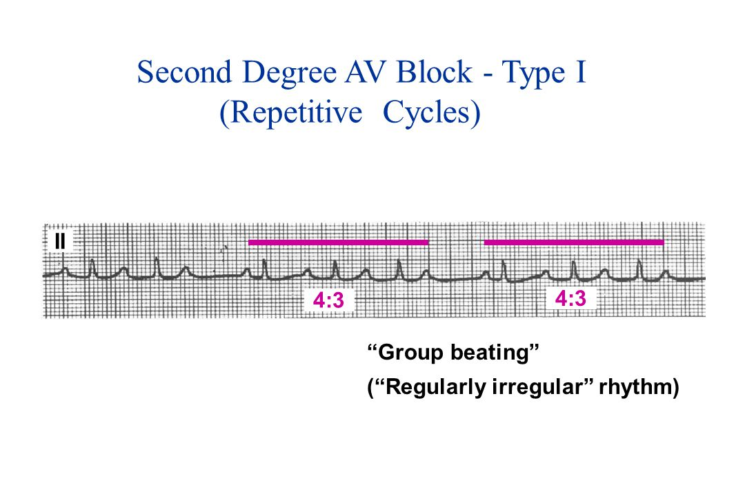 Second Degree AV Block - Type I (Repetitive Cycles)